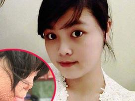 Một năm sau ngày bị chồng tẩm xăng thiêu sống, cô gái xinh đẹp ở Thạch Thất sống ra sao?