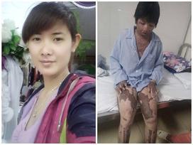 Ký ức đau thương của người vợ sống sót sau khi bị chồng nhốt rồi tưới xăng đốt cả hai