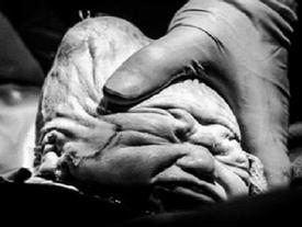 Em bé sơ sinh chào đời với chiếc đầu méo xệch khiến cha mẹ 'chết lặng'
