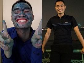 Bị thủy đậu kín mặt, chàng sinh viên quyết tâm bảo vệ tốt nghiệp đúng ngày