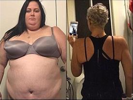 Cô gái giảm 115 kg để bảo toàn mạng sống