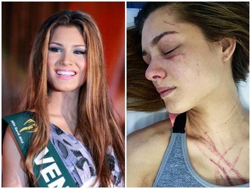 Nhan sắc hoàn hảo của hoa hậu Venezuela bị đánh dập mặt
