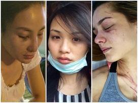 Những hoa hậu 'thân tàn ma dại' vì bị bạo hành dã man