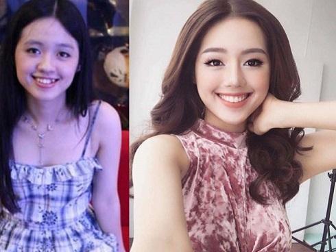 Hành trình 3 năm niềng răng của Khánh Linh The Face