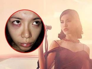Minh Tú nhập viện khẩn cấp trước thềm chung kết Asia's Next Top Model 2017