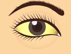 Dấu hiệu bất thường ở mắt cảnh báo sức khỏe có vấn đề