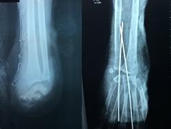 Hai ê-kíp bác sĩ cùng phẫu thuật nối liền đôi tay bị chém đứt lìa