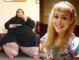 Hạnh phúc vỡ òa của cô gái nặng 300kg lột xác thần kỳ nhờ giảm cân