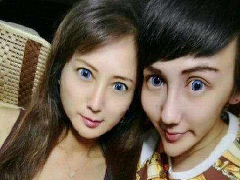 'Chàng trai mặt rắn' tiết lộ việc đưa mẹ đi phẫu thuật thẩm mỹ để giống mình