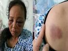 Trần tình của 2 người phụ nữ bị đánh bầm dập vì nghi bắt cóc trẻ con