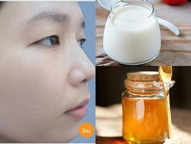 3 cách làm trắng da mặt cấp tốc chỉ với 1 gói sữa tươi 5.000 đồng