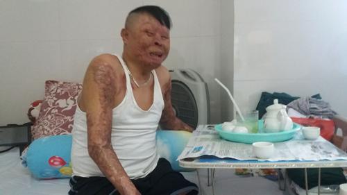 Chiến sỹ sống sót vụ máy bay rơi Hòa Lạc: 'Có hiến cho tôi tay thật cũng khó ghép nổi'