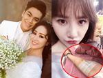 Tin sao Việt 26/7: Lê Phương tung ảnh cưới - Hari Won nhập viện truyền nước