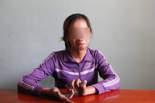 Vụ nghi bắt cóc người ở Quảng Trị: đối tượng là người đồng tính, khuyết tật-1