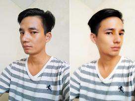 Hình ảnh đẹp trai của Lệ Rơi sau phẫu thuật thẩm mỹ khiến nhiều người ngỡ ngàng