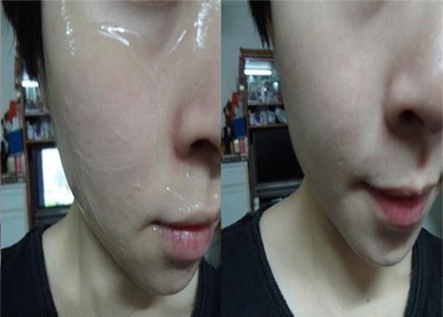 Hướng dẫn chi tiết cách uống và thoa vitamin E chuẩn nhất 100% khiến da chỉ có đẹp xuất sắc trở lên-6