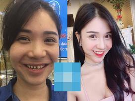 Bức ảnh HOT nhất trong ngày: Thanh Bi lộ hình kém duyên thời 'răng mỗi nơi một chiếc'