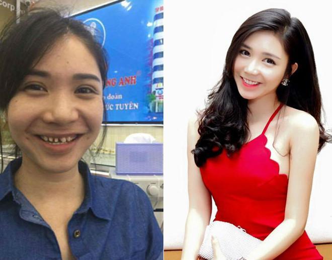 Khẳng định chỉ làm răng sứ, Thanh Bi bị 'bóc mẽ' từng phẫu thuật thẩm mỹ nhiều bộ phận-3