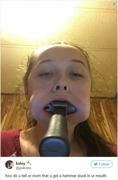Cô gái nhét búa vào miệng để chứng tỏ tình yêu với thần tượng K-pop-2