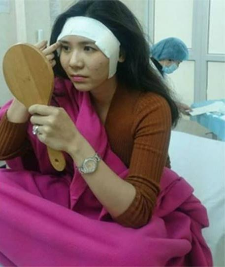 Khẳng định chỉ làm răng sứ, Thanh Bi bị 'bóc mẽ' từng phẫu thuật thẩm mỹ nhiều bộ phận-1