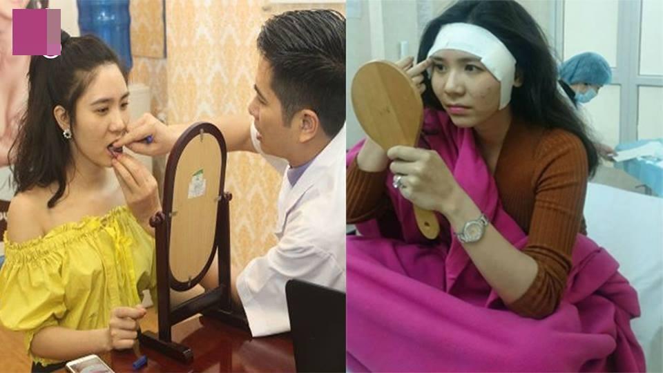 Cận cảnh quá trình phẫu thuật độn thái dương của Thanh Bi 'Người Phán Xử'-1