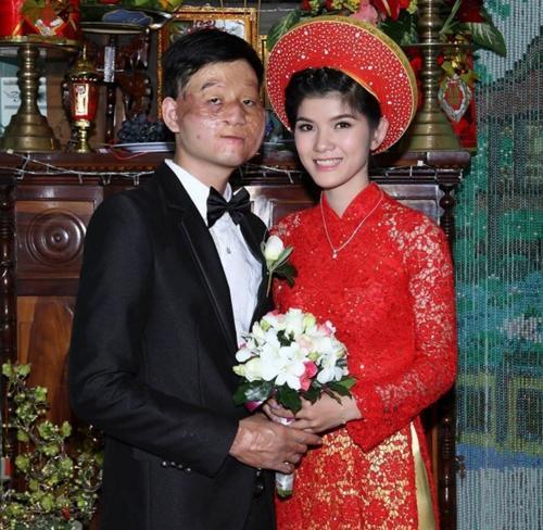 Những cặp đôi 'đũa lệch' ai nhìn cũng 'phát ngán' nhưng lại sống hạnh phúc bên nhau-2