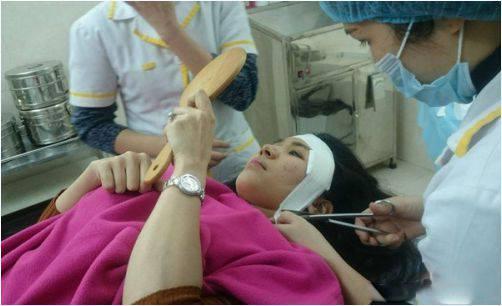Cận cảnh quá trình phẫu thuật độn thái dương của Thanh Bi 'Người Phán Xử'-6
