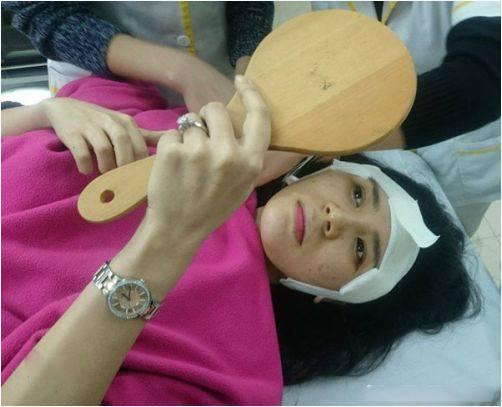 Cận cảnh quá trình phẫu thuật độn thái dương của Thanh Bi 'Người Phán Xử'-7
