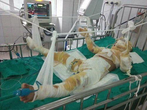 Tin nóng trong ngày 4/8: Tò mò xem nướng mực, bé trai 6 tuổi bỏng nặng phải treo tay và cắt chân-1