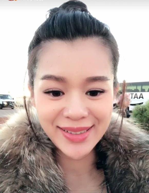 Xuất hiện với gương mặt khác lạ, Hồ Hạnh Nhi bị nghi ngờ mang thai vẫn phẫu thuật-1