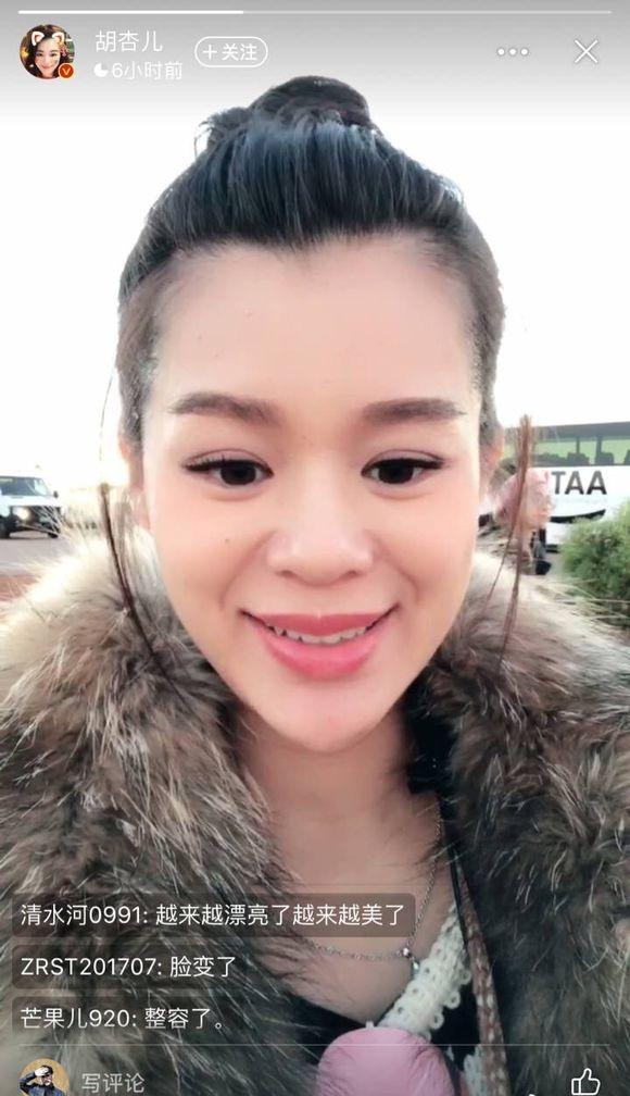 Xuất hiện với gương mặt khác lạ, Hồ Hạnh Nhi bị nghi ngờ mang thai vẫn phẫu thuật-2
