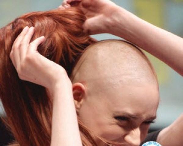 Đối phó với rụng tóc khi điều trị ung thư thế nào?-2