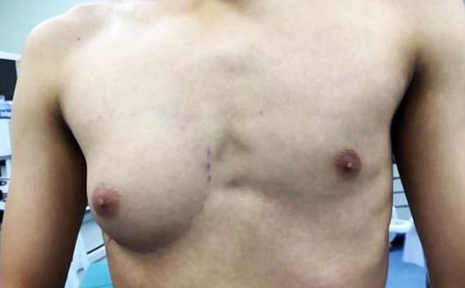 Chàng trai có ngực như phụ nữ vì ăn quá nhiều đồ ăn nhanh-1