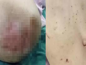 Bé gái 3 tuổi bị bỏng da đầu, kim đâm chi chít ở bụng từ những lần tra tấn dã man của mẹ kế