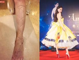 Kinh hãi những màn tra tấn chân trên giày cao gót của các ngôi sao