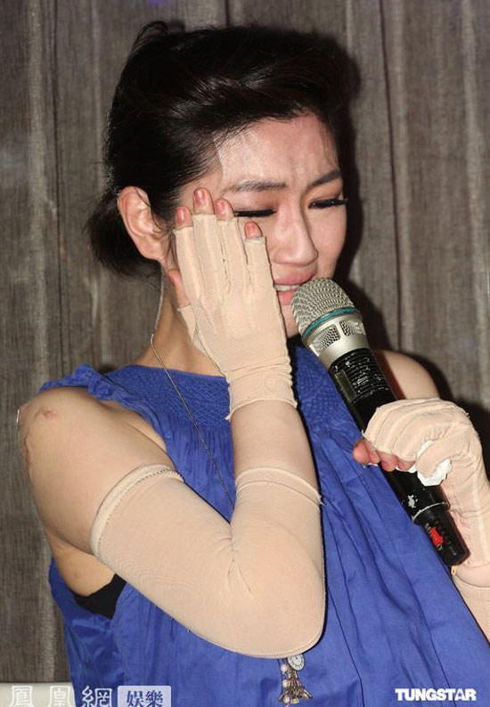 Selina (S.H.E) đau đớn bật khóc khi nhắc lại tai nạn bỏng toàn thân-6