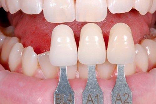 Kết quả hình ảnh cho Ý kiến trái ngược với nhau nên được răng sứ