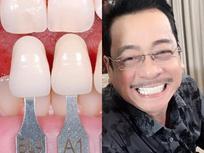 Dán răng sứ: Tưởng an toàn vì chẳng cần mài bọc răng vẫn trắng đẹp, nhưng không phải ai cũng làm được