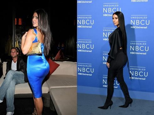 Cuối cùng, Kim Kardashian đã thú nhận bơm vòng 3 nhưng với lý do không ai ngờ tới