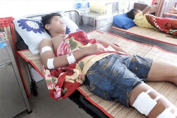 Đang đứng trước nhà, một học sinh lớp 10 bị chém nhập viện-1