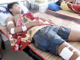 Đang đứng trước nhà, một học sinh lớp 10 bị chém nhập viện