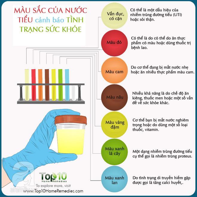 Màu sắc của nước tiểu cảnh báo tình trạng sức khỏe của bạn-1