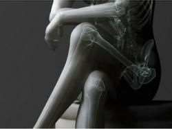 Ngồi vắt chéo chân: Thói quen nguy hiểm cần bỏ