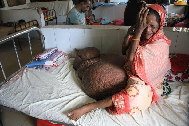 Người phụ nữ mang chiếc chân voi nặng hơn 60 kg-2