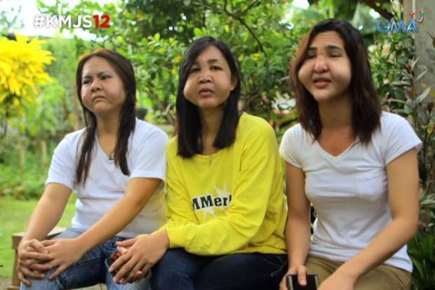 3 cô bạn thân người Philippines cùng biến dạng mặt vì tiêm filler giá rẻ-1