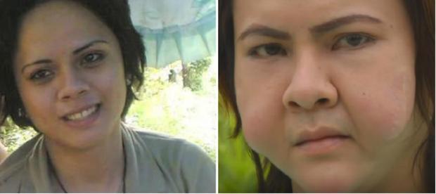 3 cô bạn thân người Philippines cùng biến dạng mặt vì tiêm filler giá rẻ-3