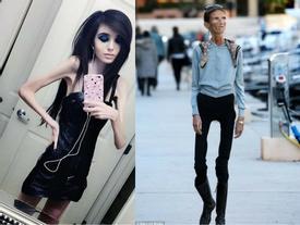 5 cô gái trẻ xinh đẹp hóa 'bộ xương khô' vì giảm cân quá mức