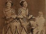 Chuyện ly kỳ về đời sống tình dục của cặp song sinh dính liền nổi tiếng lịch sử