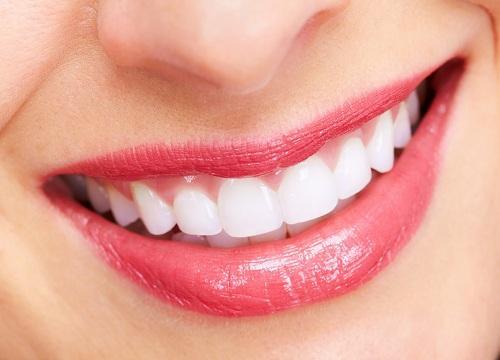 1 quả chanh - 3 cách tẩy trắng răng cực hiệu quả ai cũng nên biết-1