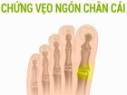 Cách ngăn ngừa chứng vẹo ngón chân cái
